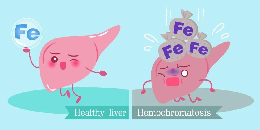 haemochromatosis treatment