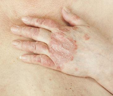 psoriatic arthritis medication