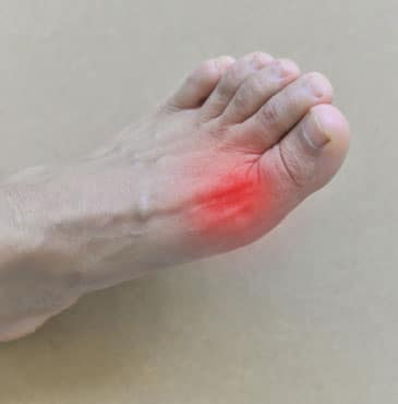 gout treatment medication