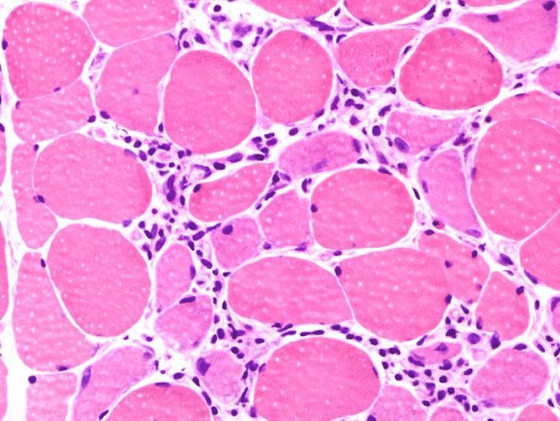 Image from a muscle biopsy showing evidence of polymyositis