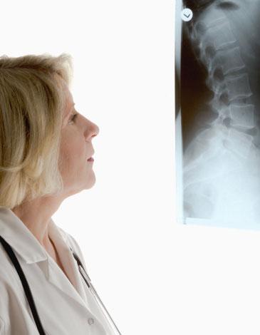 spondyloarthritis medication