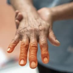 sjorgren syndrome